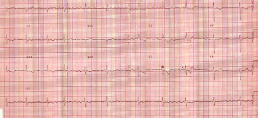 caso_estenosis_mitral/ECG_EKG_electrocardiograma