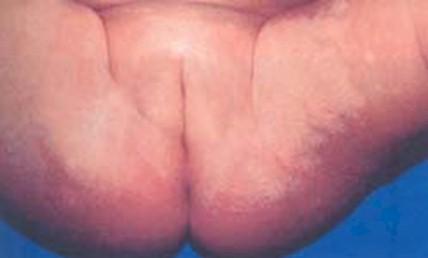 El yodo de la psoriasis las revocaciones