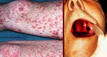 plaquetas_purpura_trombocitopenica/PTI_PTT_plaquetopenia