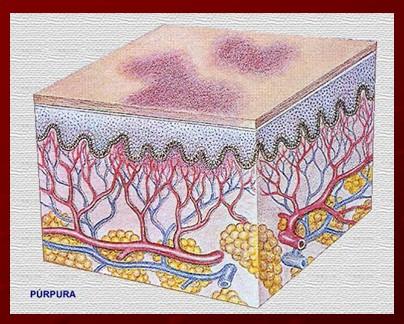 plaquetas_purpura_trombocitopenica/manchas_puntos_purpuricos