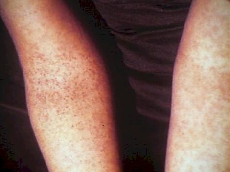 prevalencia_dengue_asintomatico/prueba_torniquete_positiva