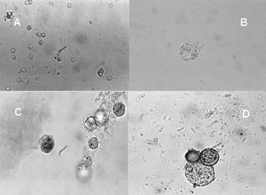 queratitis_cornea_acanthamoeba/bacilo_gramnegativo_quistes