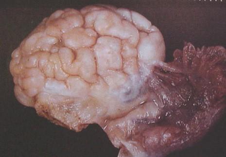 tumores_ovario_tumor/anatomia_aspecto_morfologia