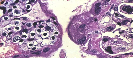 tumores_ovario_tumor/coriocarcinoma_coriocarcinomas_histologia