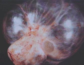 tumores_ovario_tumor/endometrioides_endometrioide_maligno