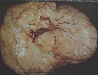 tumores_ovario_tumor/fibroma_fibromas_ovarico