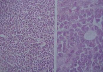 tumores_ovario_tumor/granulosa_teca_histologia
