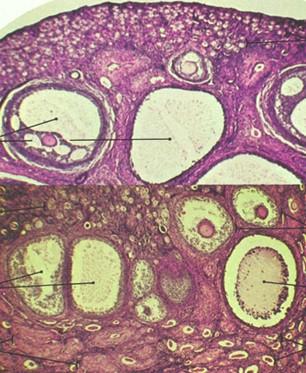 tumores_ovario_tumor/histologia_anatomia_patologica