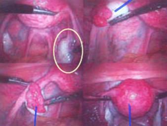 tumores_ovario_tumor/laparoscopia_vision_laparoscopica