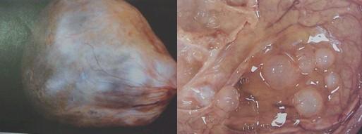 tumores_ovario_tumor/mucinoso_benigno_benignos