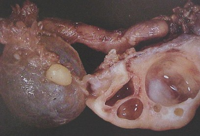 tumores_ovario_tumor/ovarios_poliquisticos_quisticos