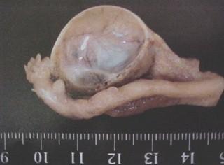 tumores_ovario_tumor/quiste_folicular_macroscopico