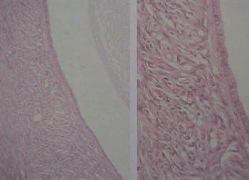 tumores_ovario_tumor/quiste_folicular_microscopico