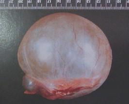 tumores_ovario_tumor/quiste_luteinico