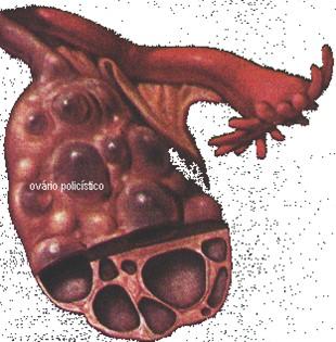 tumores_ovario_tumor/sindrome_ovario_poliquistico