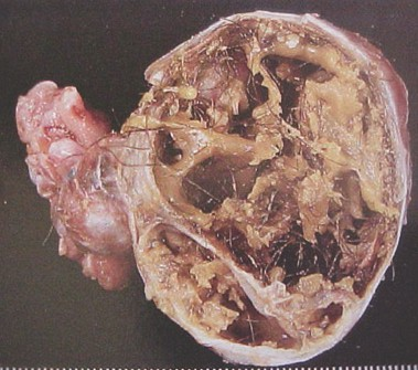 tumores_ovario_tumor/teratoma_inmaduro_maligno