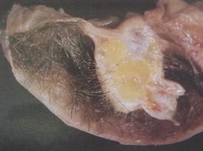 tumores_ovario_tumor/teratoma_maduro_benigno