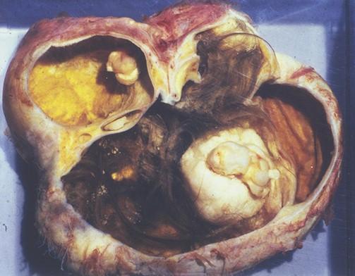 tumores_ovario_tumor/teratoma_teratomas_ovarico
