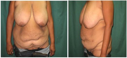 cirugia_obesidad_morbida/preoperatorio_dermolipectomia_abdominal