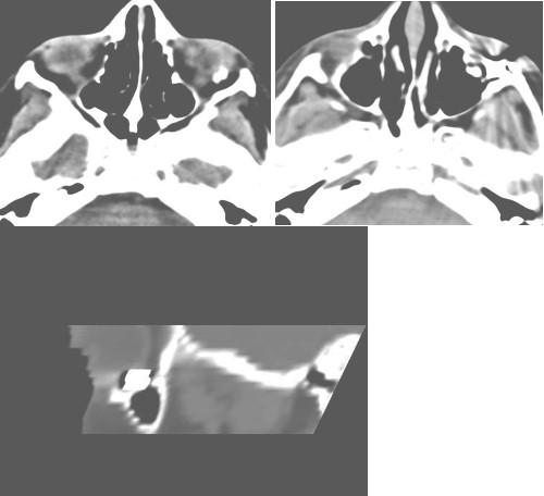 cuerpo_traumatismo_intraorbitario/TAC_orbita_ocular