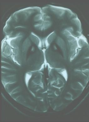 enfermedad_Hallervorden-Spatz/RMN_axial_T2