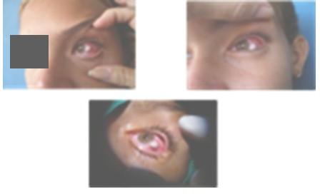 papiloma_conjuntiva_conjuntival/neoplasia_epitelial_benigna