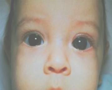 problemas_visuales_infancia/glaucoma_congenito
