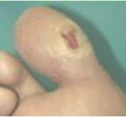 tratamiento_ulceras_presion/ulcera_neuropatica