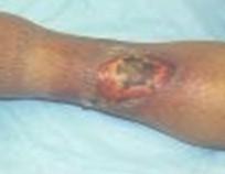 tratamiento_ulceras_presion/ulcera_vascular_arterial