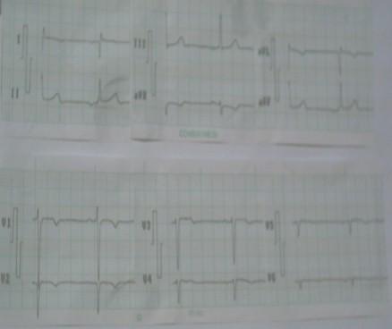 dextrocardia_malposicion_cardiaca/ecg_electrocardiograma