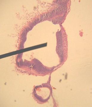 embarazo_ectopico_gemelar/anatomia_patologica_histologia