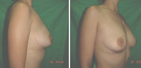 atencion_primaria_cirugia/anisomastia_atratamiento_quirurgico