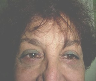atencion_primaria_cirugia/blefaroplastia_inferior_resultado