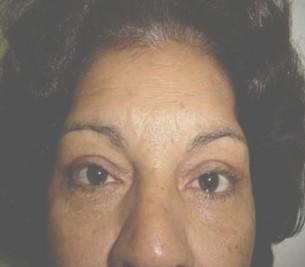 atencion_primaria_cirugia/blefaroplastia_superior_resultado