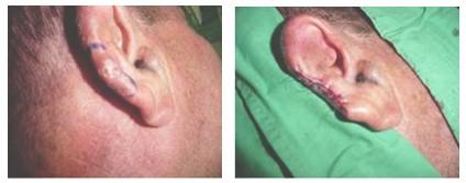 atencion_primaria_cirugia/carcinoma_basocelular_cirugia