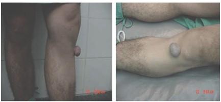 atencion_primaria_cirugia/hidrodenoma_nodular