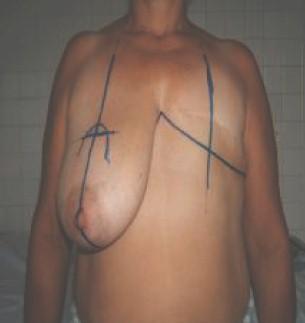 biparticion_mamaria_postmastectomia/mamoplastia_marcaje_preoperatorio
