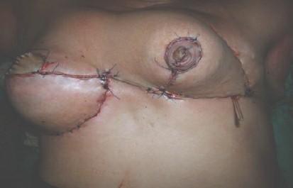 biparticion_mamaria_postmastectomia/mamoplastia_postoperatorio_inmediato