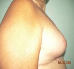 biparticion_mamaria_postmastectomia/mamoplastia_postoperatorio_resultados