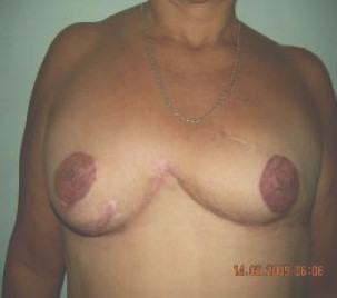 biparticion_mamaria_postmastectomia/mamoplastia_resultado_definitivo