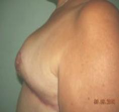 biparticion_mamaria_postmastectomia/resultado_mama_contralateral