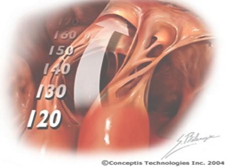 crisis_hipertensivas_HTA/hipertension_arterial