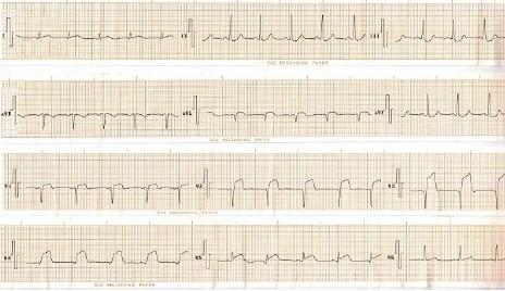 ECG_IAM_IMA/infarto_cara_anterior