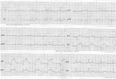 ECG_IAM_IMA/supradesnivel_ST_infarto
