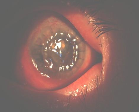 hemorragia_expulsiva_tardia/ojo_izquierdo_derecho