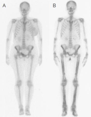 osteoartropatia_hipertrofica_paraneoplasica/gammagrafia_osea_completa