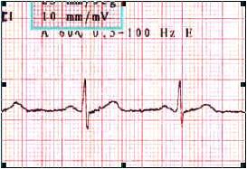 ECG_electrocardiografia_basica/componentes_ecg_normal