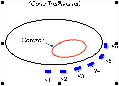 ECG_electrocardiografia_basica/corte_precordiales_unipolares
