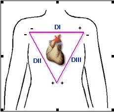 ECG_electrocardiografia_basica/derivaciones_bipolares_clasicas