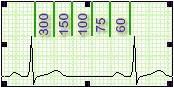 ECG_electrocardiografia_basica/determinacion_frecuencia_cardiaca